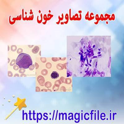پک-کامل-از-تصاوير-هماتولوژي-(خون-شناسي)-با-توضيحات-فارسي-و-کامل